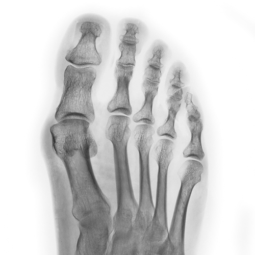X-Ray / Diagnostic Imaging